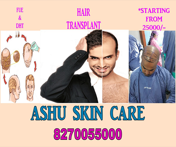 best Hair transplant in bbsr